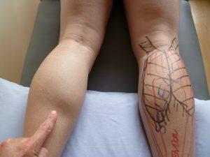 Tekaška poškodba